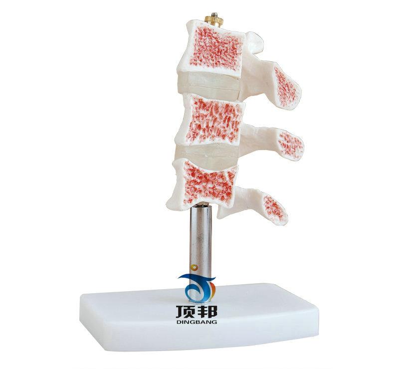 脊椎典型病变模型